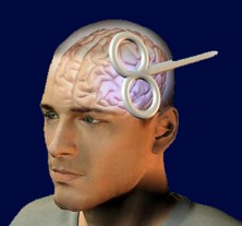 Long term effects of rTMS | Non-Invasive Neurostimulation